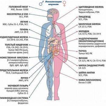 Прагнення жити - Онкомаркери. Рання діагностика раку | Фонд Інна - Благодійний фонд допомоги онкохворим