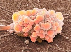 Стремление жить - Опухоль не всегда бывает раковой и по наследству не передается! | Фонд Инна