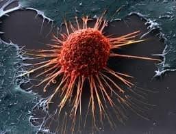 Стремление жить - Рак наступает!   Фонд Инна