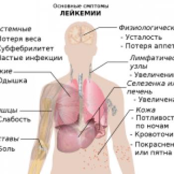 Галерея - Симптомы рака | Фонд Инна