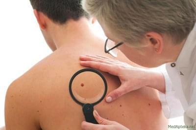 Стремление жить - В Украине растут показатели заболеваемости меланомой кожи | Фонд Инна