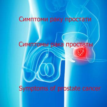 Прагнення жити - Симптоми раку простати. Відео | Фонд Інна - Благодійний фонд допомоги онкохворим