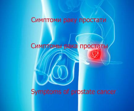 Прагнення жити - Симптоми раку простати. Відео | Фонд Інна