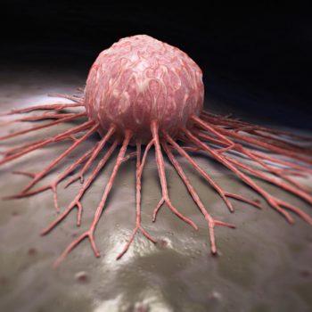 Стремление жить - История онкологии. Этапы борьбы. Часть III | Фонд Инна - Благотворительный фонд помощи онкобольным