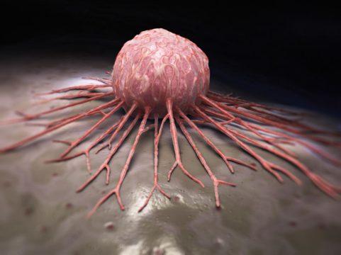 Стремление жить - История онкологии. Этапы борьбы. Часть III | Фонд Инна